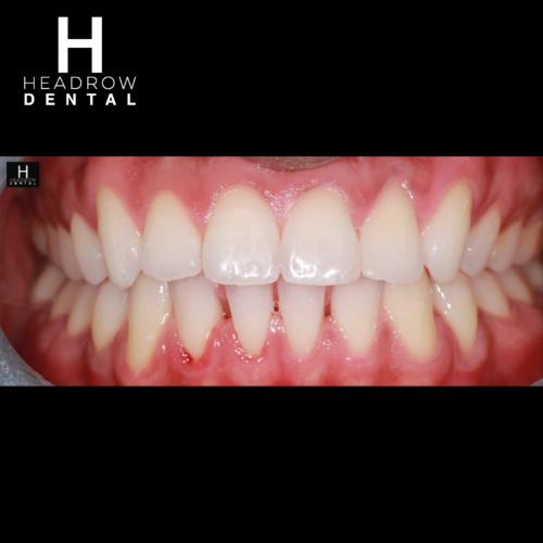 Headrow Dental Web images _ortho cases 1