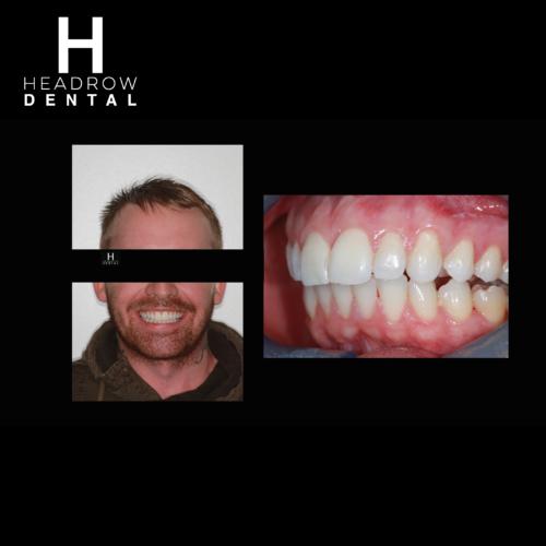 Headrow Dental Web images _ortho cases 2