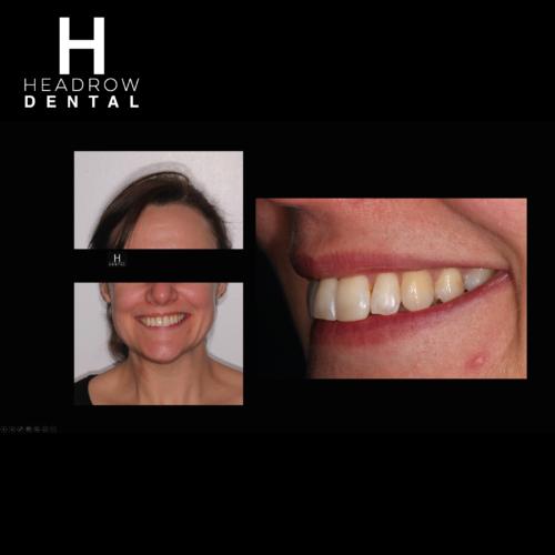 Headrow Dental Web images _ortho cases 3