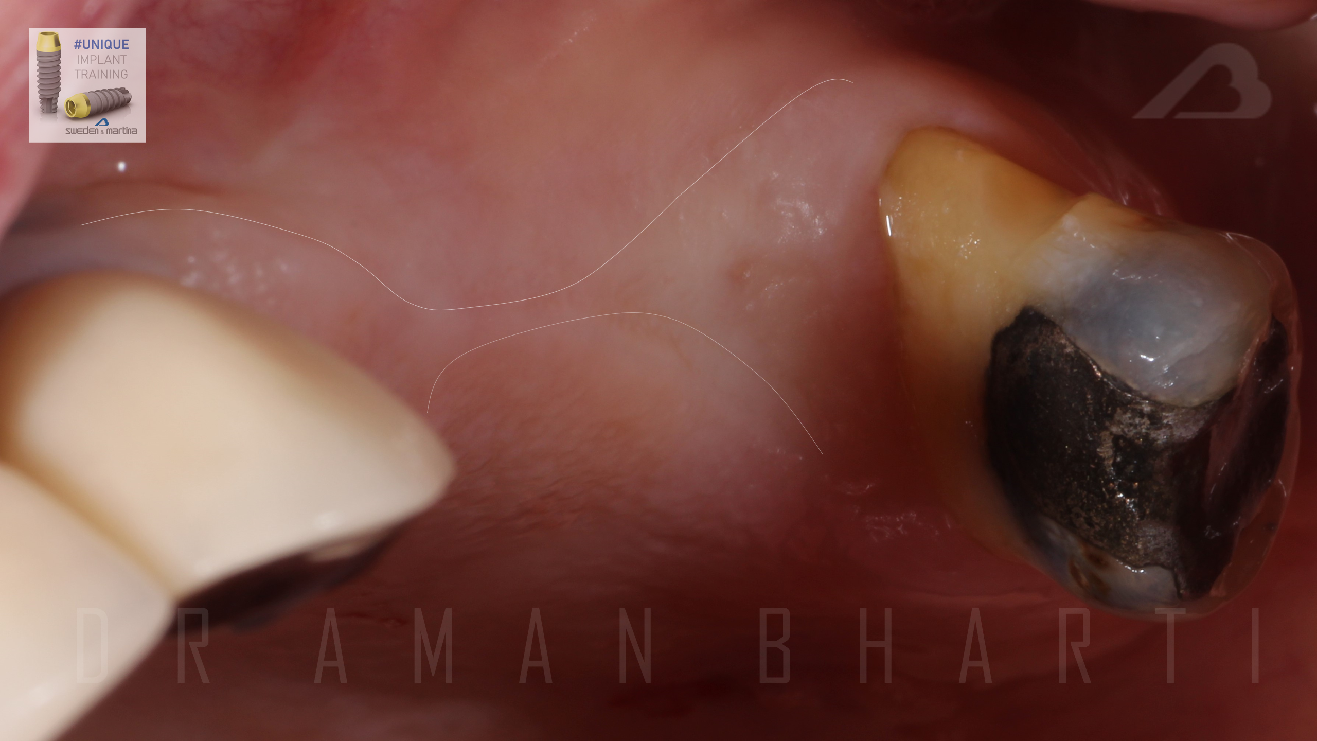 implant case 1 a