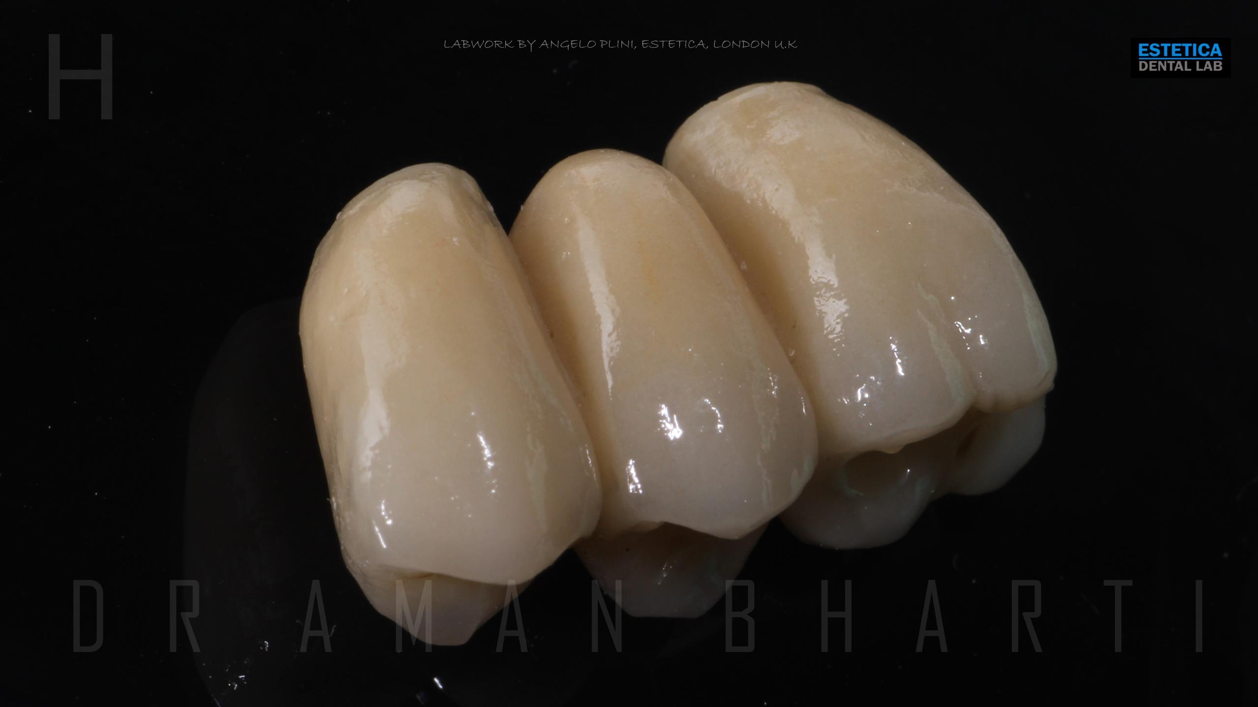 implant case 1 c
