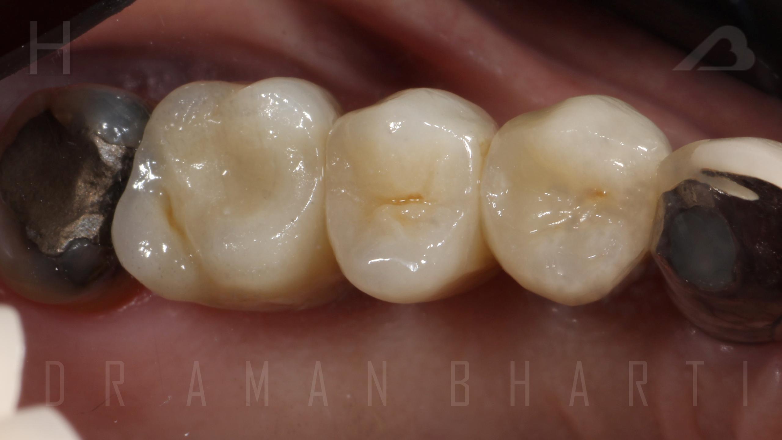 implant case 1 d