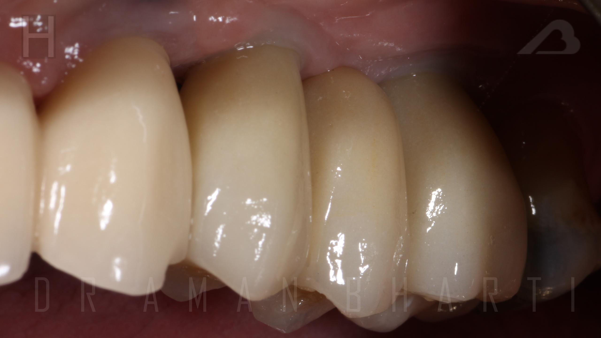 implant case 1 e