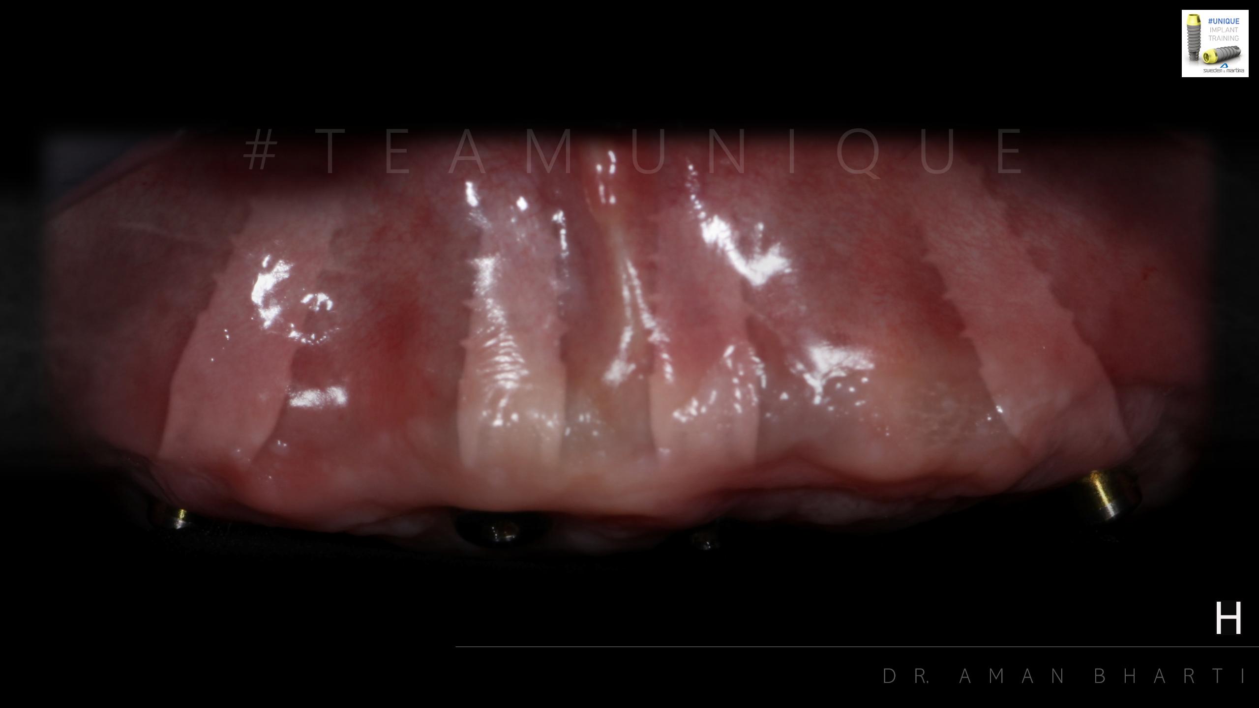 implant case 2 b