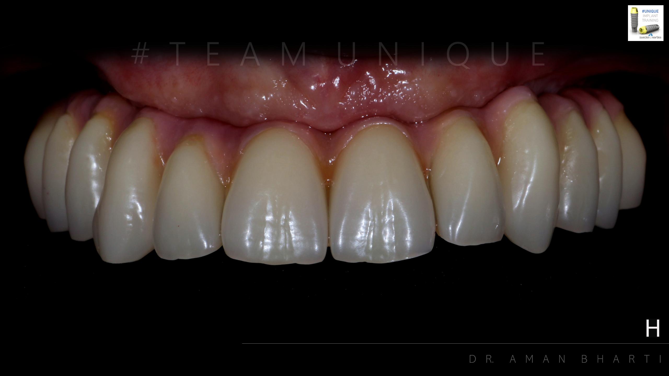 implant case 2 c