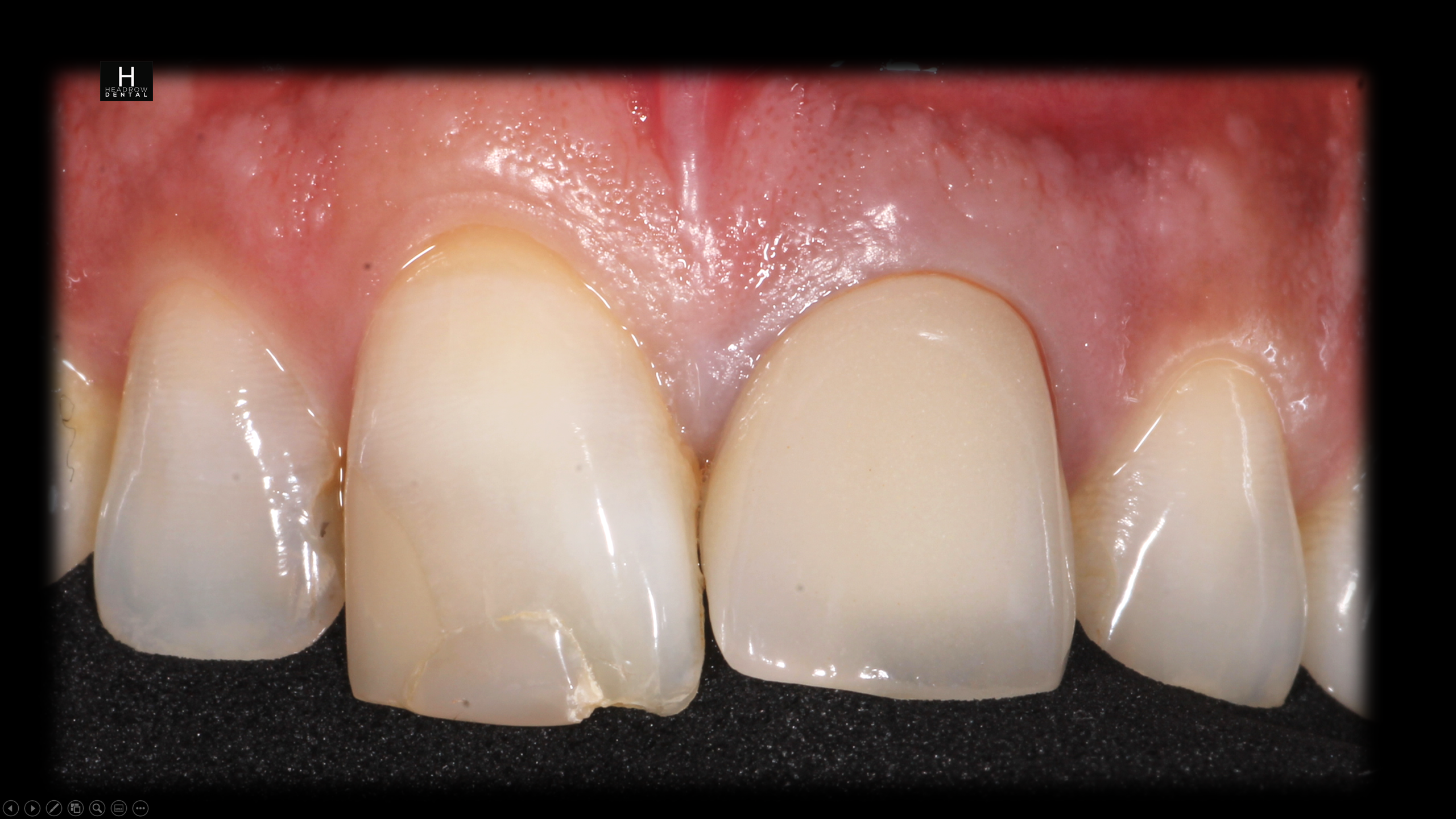 implant case 3 a