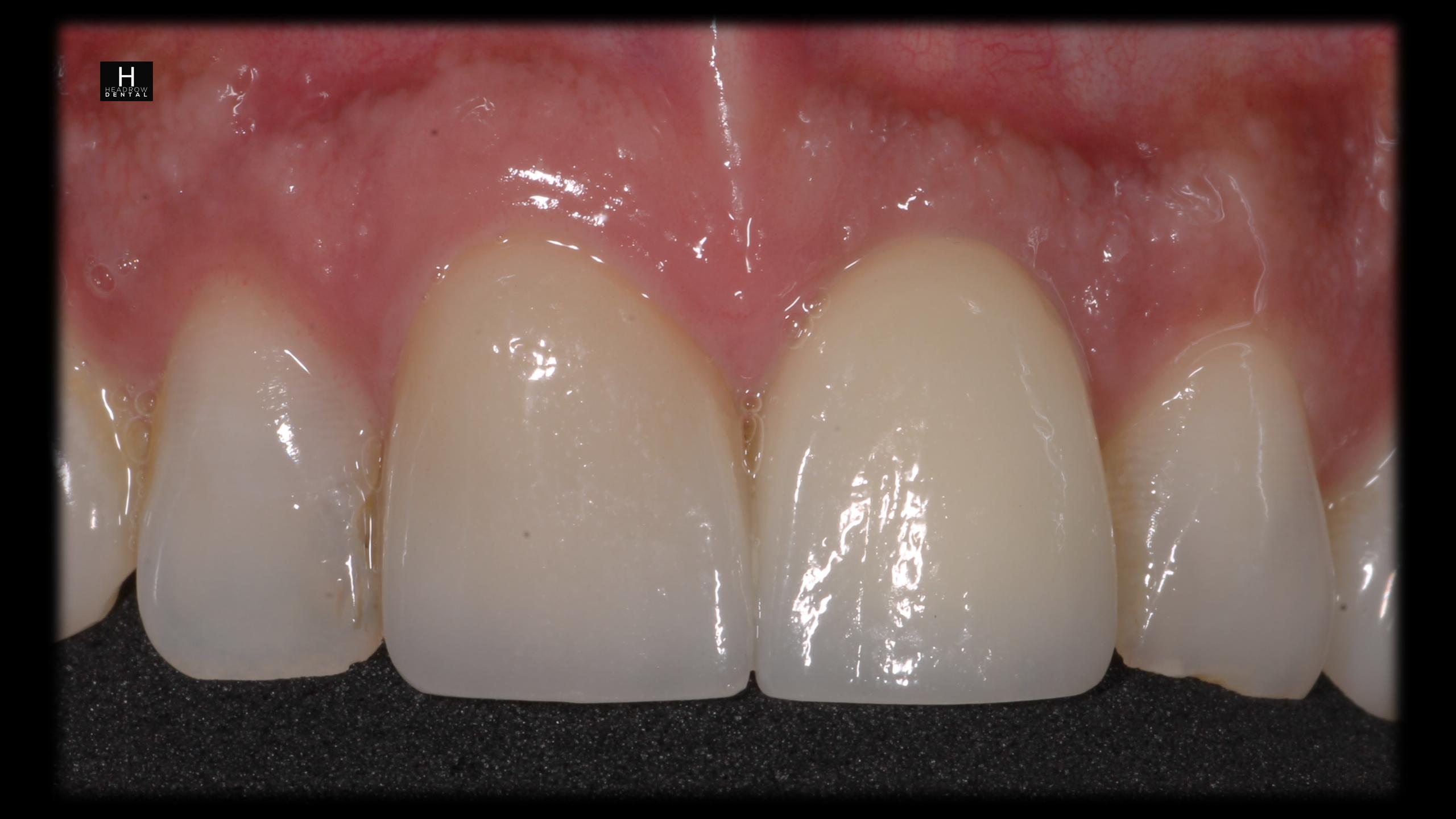 implant case 3 c